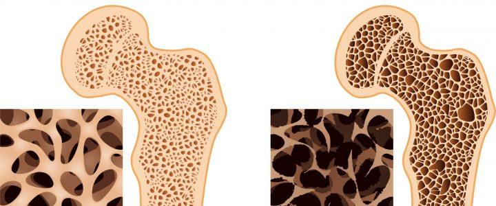 Mákolajjal a csontritkulás ellen